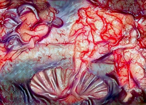 cerebral-cortex